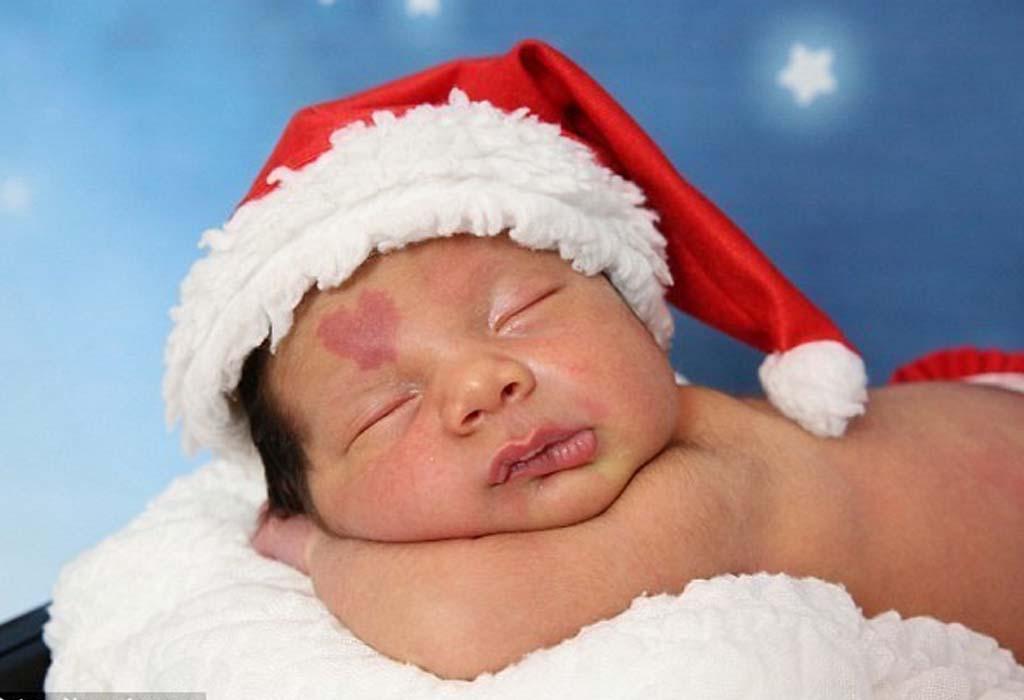On l'a surnommé « bébé d'amour » à cause de sa tache de naissance